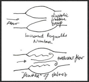 diastolic pressure trap 2