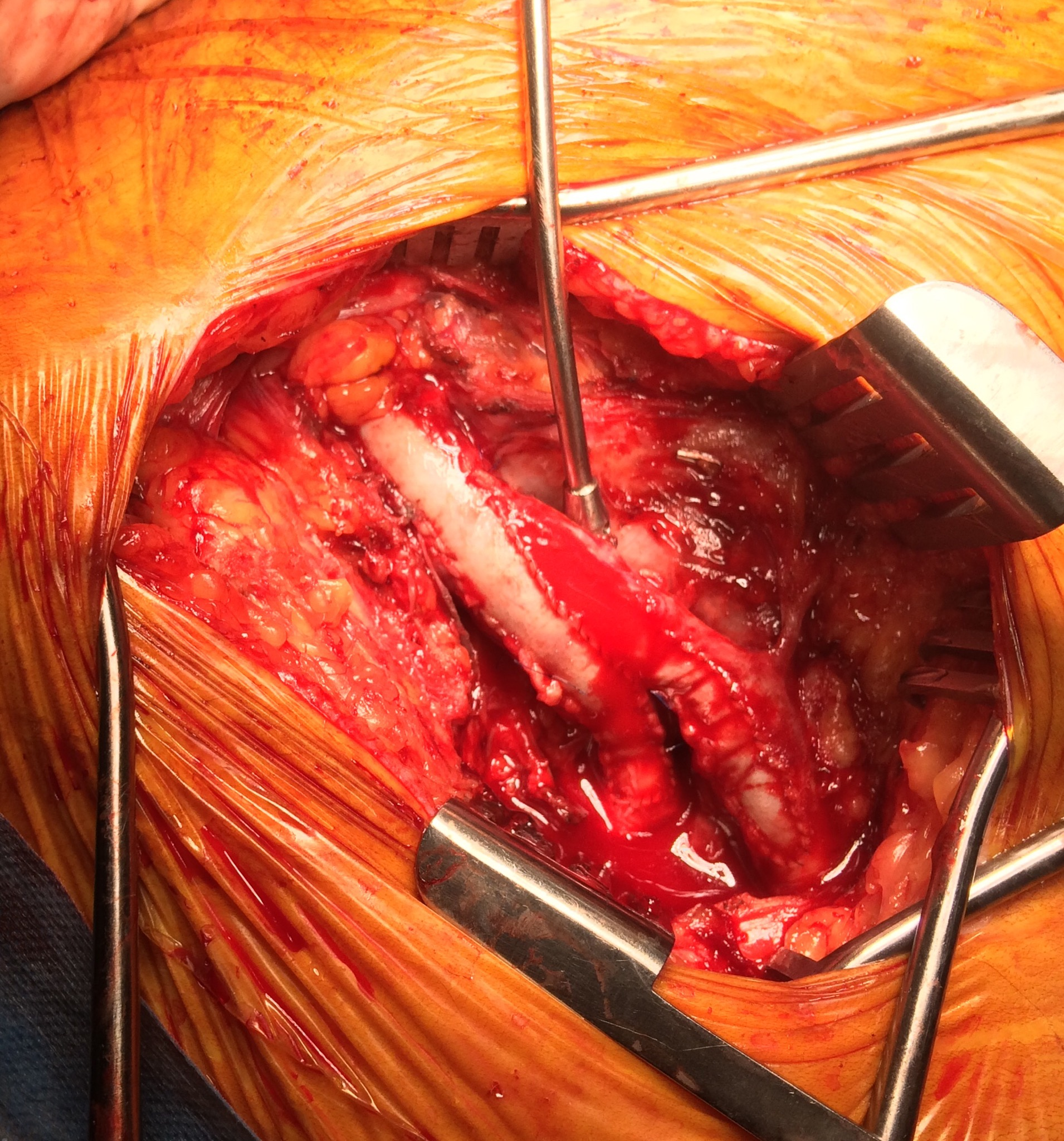 The Final Frontiers The Open Surgical Niches A Surgeon