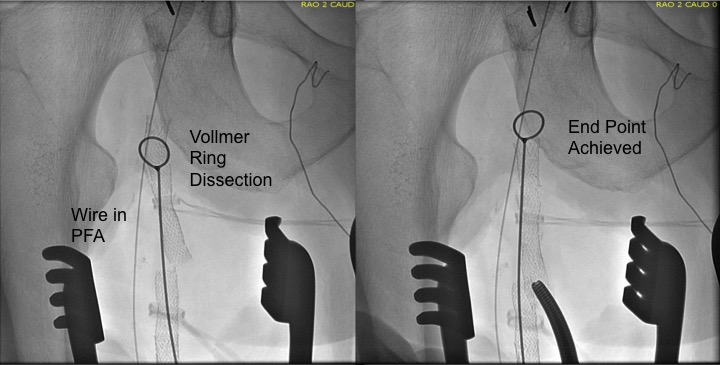 proximal dissection