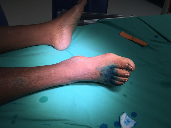 Isosulfan blue is injected into the subcutaneous spaces between the toes.