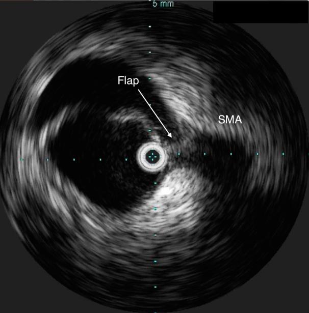IVUS confirming true lumen access, and dissection flap compressing SMA origin