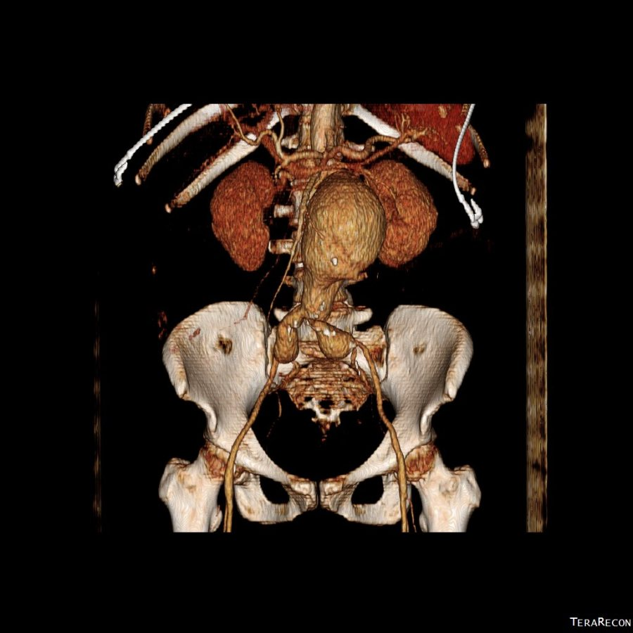 CTA AAA with pancreatitis_1
