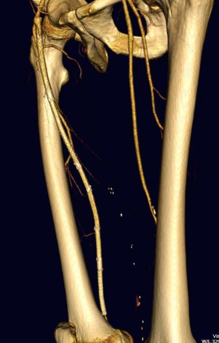 CTA medial oblique