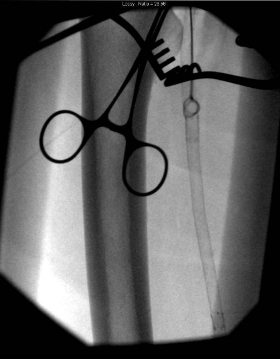 Vollmer Ring Dissector around plaque & stents