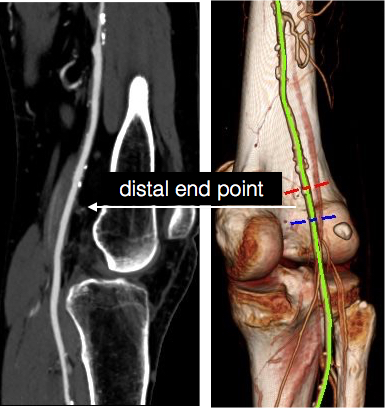 distal end point