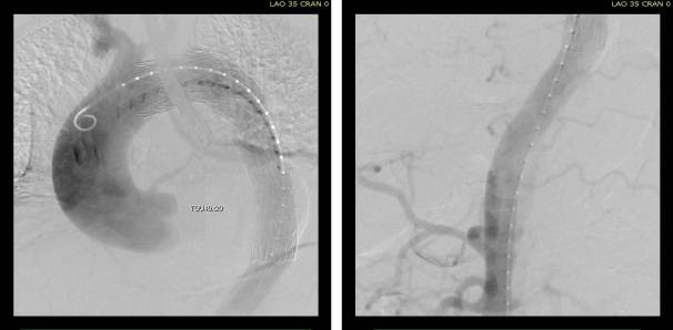 Post-Stent aortography