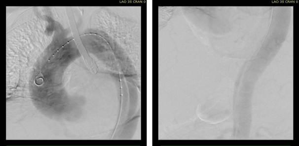 pre aortography