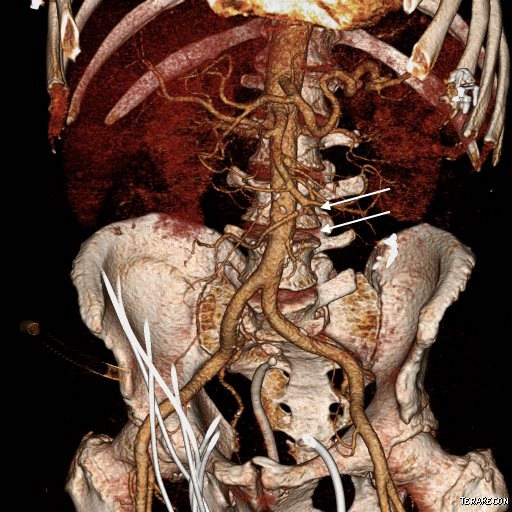 Endovascular Today - Endovascular Repair of an SMA Aneurysm With ...