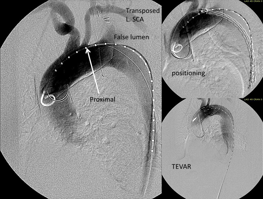 TEVAR with carotid SCA transposition