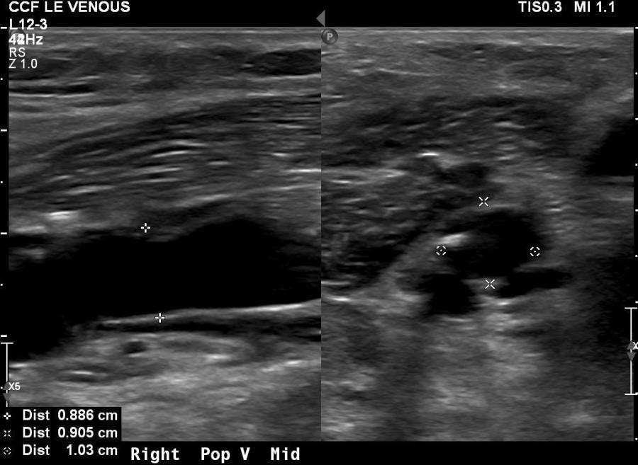 pop venous aneurysm post18