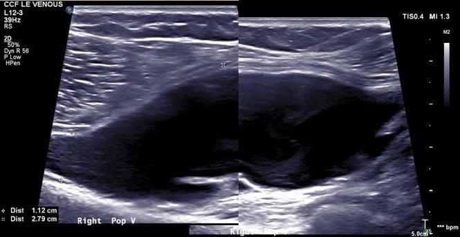 preop duplex popliteal venous aneurysm.png