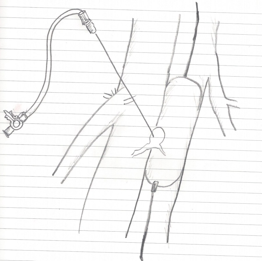 pseudoaneurysm avf procedure sketch