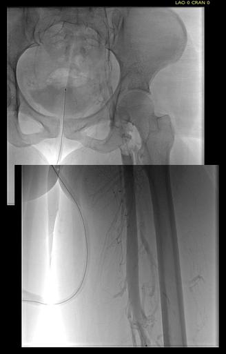 femoral-vein-pre-tpa