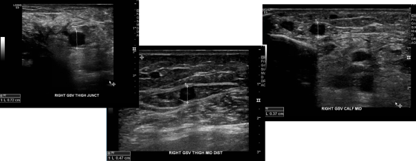 preop saph vein mapping.png