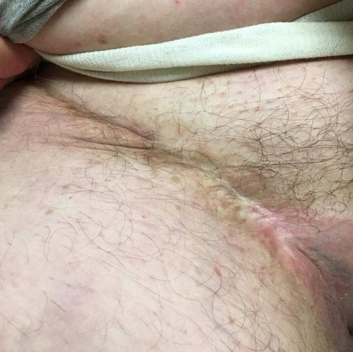 IMG_0657