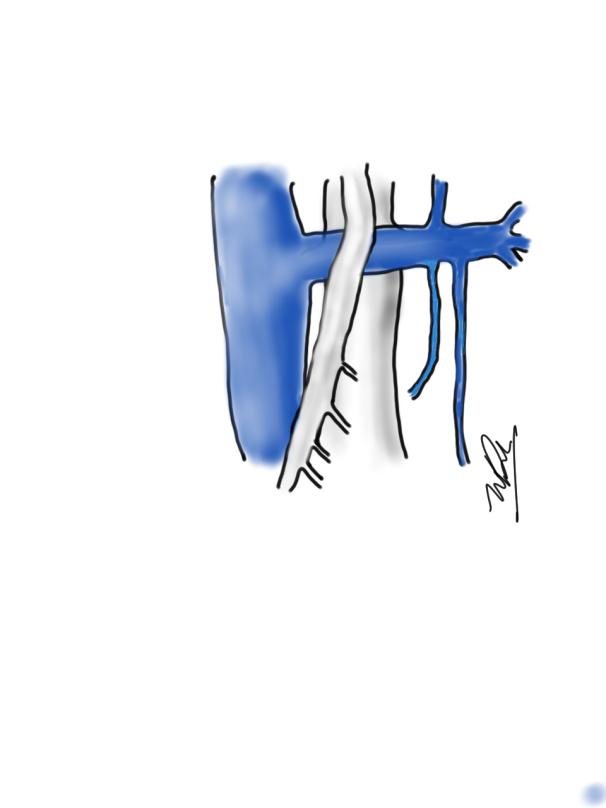 sketch1548482384179.png
