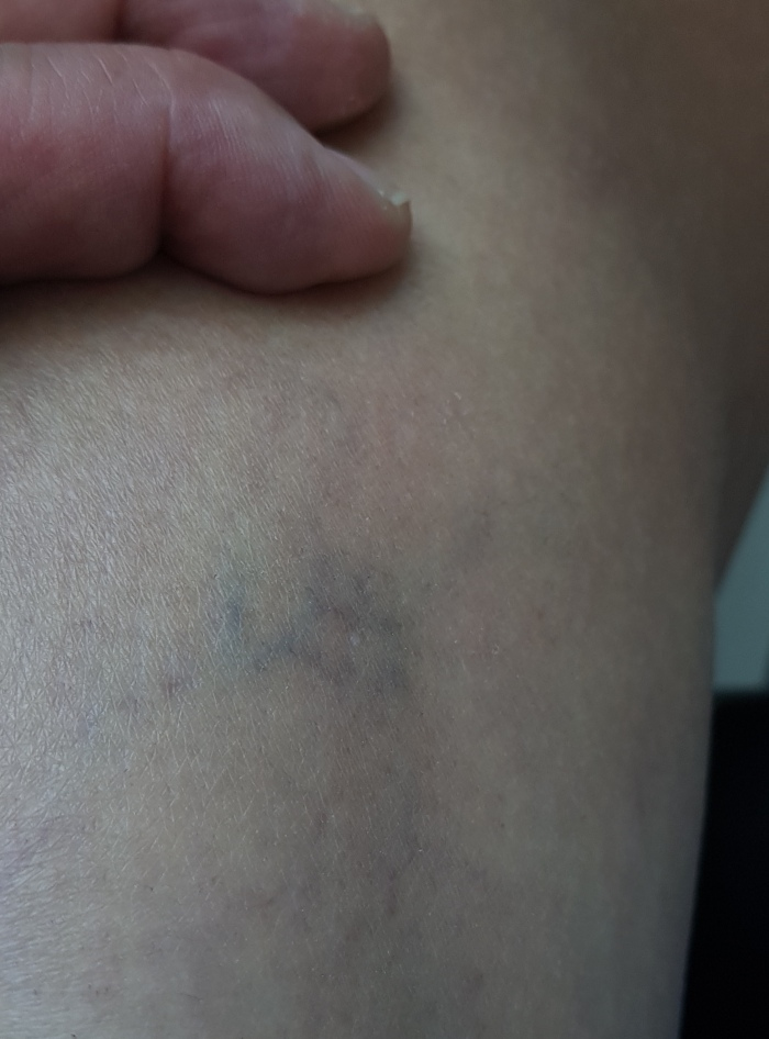my spider vein