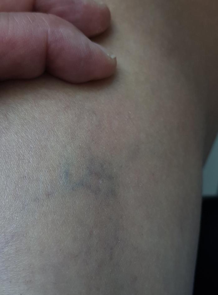 my spider vein