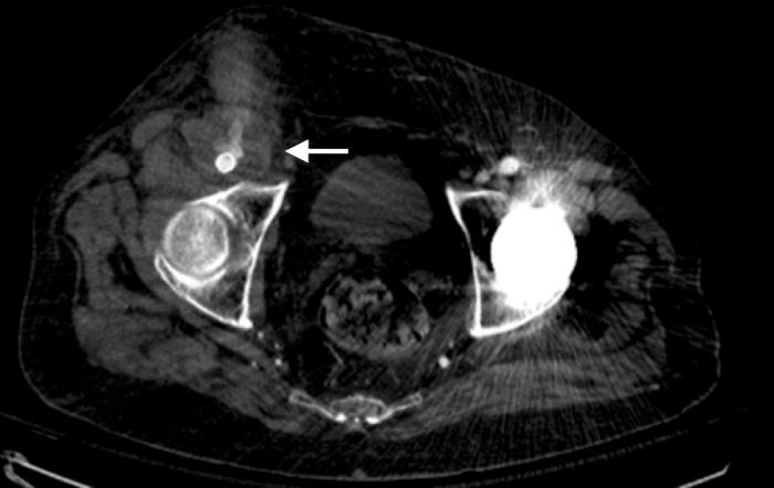 CT scan pseudoaneurysm virvilis