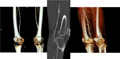 CTA of knee