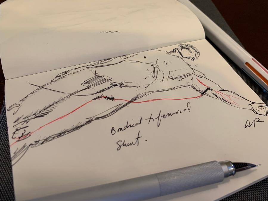 brachial to femoral shunt sketch