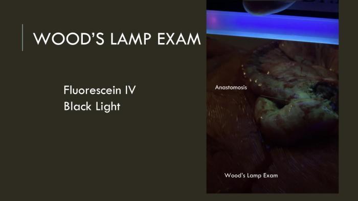 Acute Mesenteric Ischemia case presentation (7)